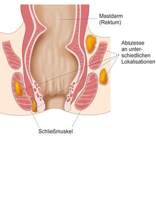 Analabszess München Behandlung