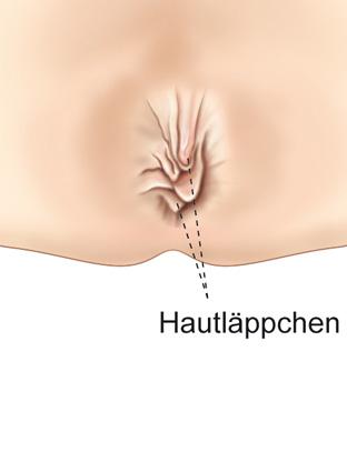 Analmarisken München Behandlung