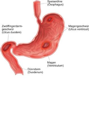 Gastritis München Prof. Dr. Kauer