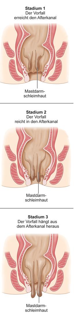 Rektumprolaps München Mastdarmvorfall